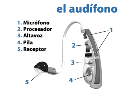 Qué es un audífono, ¿para qué sirve?