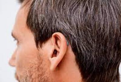 ¿Necesito audífonos para los acúfenos?
